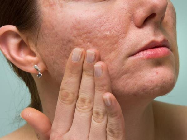 нанести масло на проблемную кожу