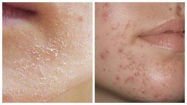шелушение и высыпание на коже